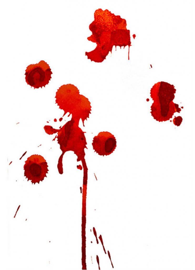 Bad Blood Between Casino Dealers